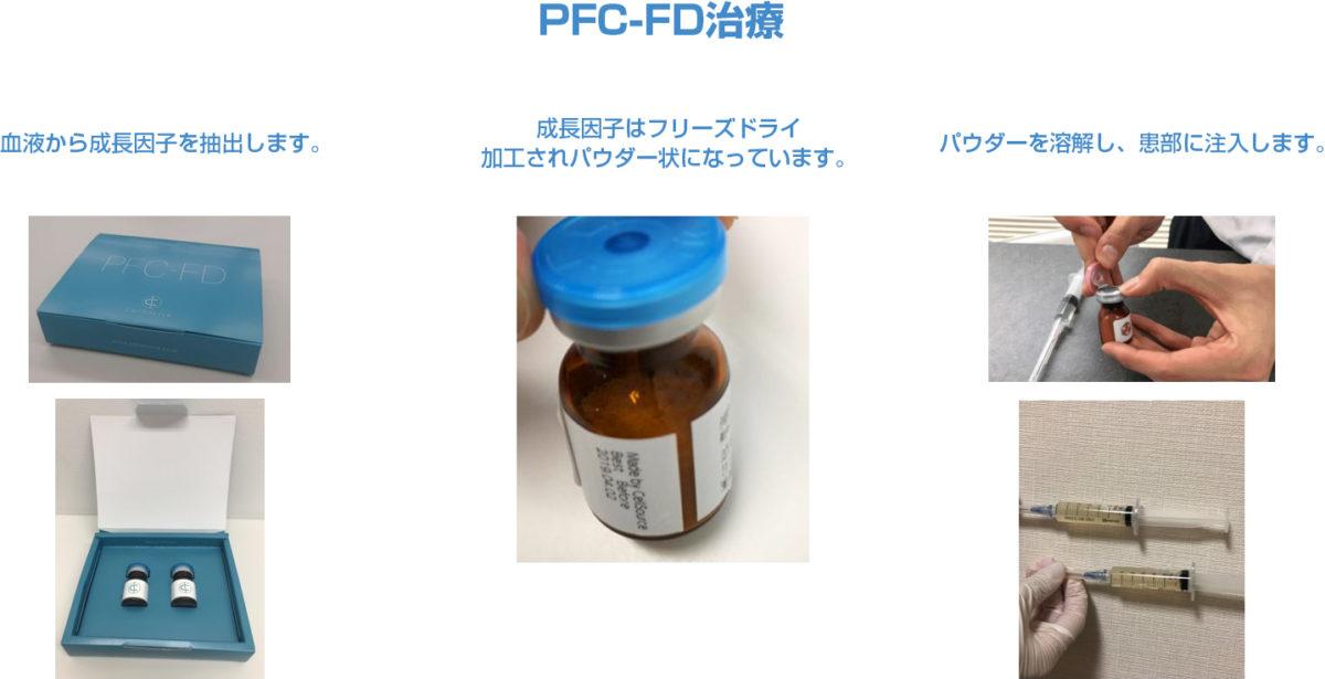 PFC治療